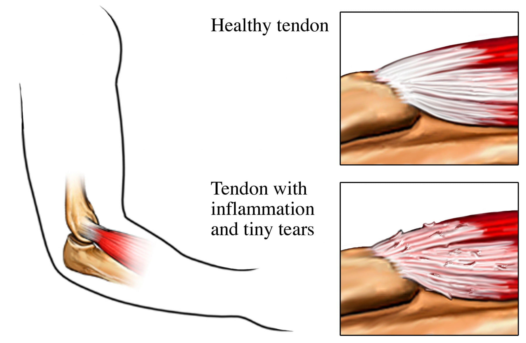 Tennis elbow – Stop being backhanded by elbow pain - Bellefleur ...