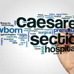 C-section – What Are The Consequences On The Body?