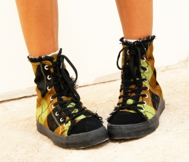 """My child is """"Pigeon Toed"""", is this bad? The facts behind intoeing in children"""