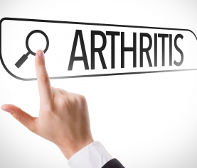 Arthritis – Can Physiotherapy Help?