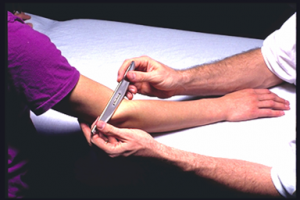 Instrument assisted soft tissue mobilization for tennis elbow