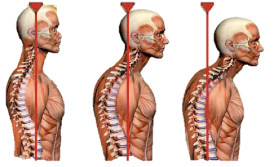 Tingling hands, tight muscles and bad posture – the untold ...